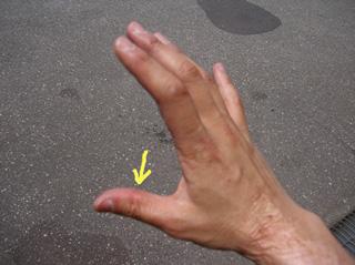 親指のタコ