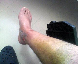 剥き身の足